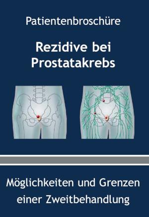 Patienteninformationen Prostatakrebs - Rezidive bei Prostatakrebs